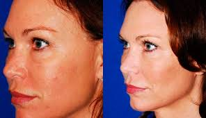 Laser Resurfacing Procedures Denver